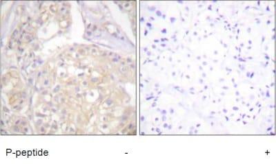 Immunohistochemistry (Formalin/PFA-fixed paraffin-embedded sections) - Anti-FGFR1 (phospho Y766) antibody (ab59180)