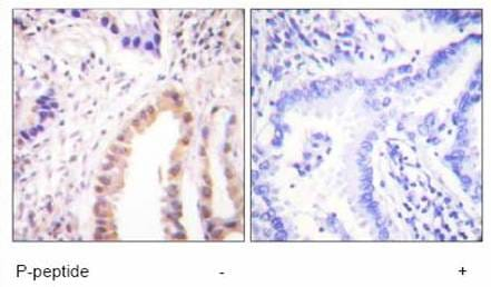 Immunohistochemistry (Formalin/PFA-fixed paraffin-embedded sections) - Anti-MEF2D (phospho S444) antibody (ab59200)