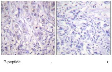 Immunohistochemistry (Formalin/PFA-fixed paraffin-embedded sections) - Anti-Nucleophosmin (phospho T199) antibody (ab59353)