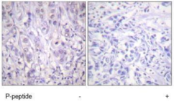 Immunohistochemistry (Formalin/PFA-fixed paraffin-embedded sections) - Anti-Nucleophosmin (phospho T199) antibody (ab59353)