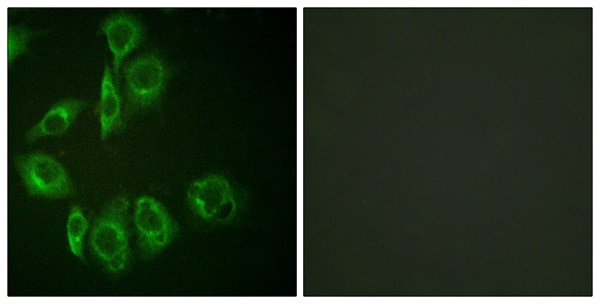 Immunocytochemistry/ Immunofluorescence - Anti-PKC antibody (ab59363)
