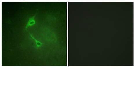 Immunocytochemistry/ Immunofluorescence - Anti-PKC zeta antibody (ab59364)