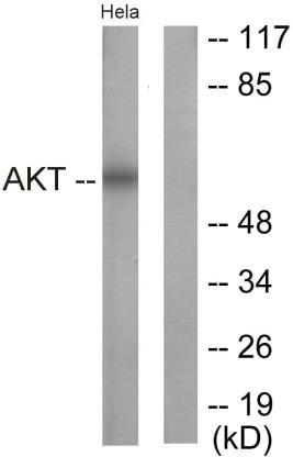 Western blot - Anti-AKT1 antibody (ab59380)