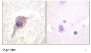 Immunohistochemistry (Formalin/PFA-fixed paraffin-embedded sections) - Anti-PKC zeta (phospho T560) antibody (ab59412)