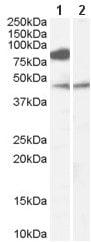 Western blot - Anti-ZDHHC8 antibody (ab59483)