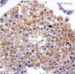 Immunohistochemistry (Formalin/PFA-fixed paraffin-embedded sections) - Anti-CD82 [TS82b] antibody (ab59509)