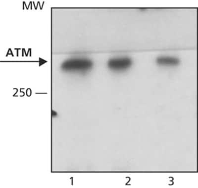 Western blot - Anti-ATM antibody [MAT3-4G10/8] (ab59541)