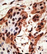 Immunohistochemistry (Formalin/PFA-fixed paraffin-embedded sections) - Anti-GJB6 antibody (ab59927)