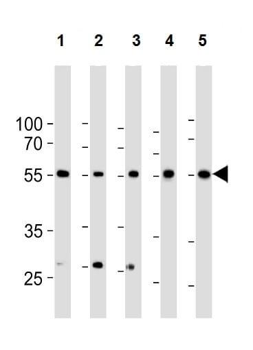 Western blot - Anti-BMPR1A antibody (ab59947)