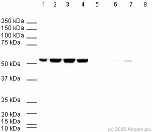 Western blot - Anti-beta Tubulin antibody - Loading Control (ab6046)