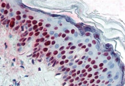 Immunohistochemistry (Formalin/PFA-fixed paraffin-embedded sections) - Anti-Aly/Ref antibody [11G5] (ab6141)