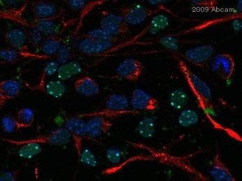Immunocytochemistry/ Immunofluorescence - Anti-Nestin antibody [Rat 401] (ab6142)