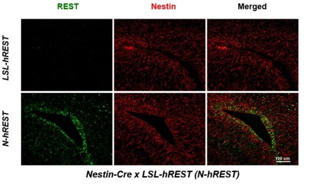 Immunohistochemistry (Formalin/PFA-fixed paraffin-embedded sections) - Anti-Nestin antibody [Rat 401] (ab6142)