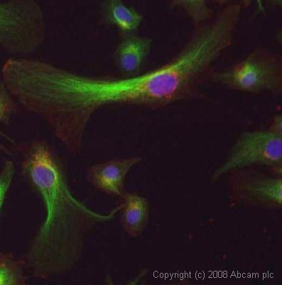 Immunocytochemistry/ Immunofluorescence - Anti-Tubulin antibody [YOL1/34] - Microtubule Marker (ab6161)