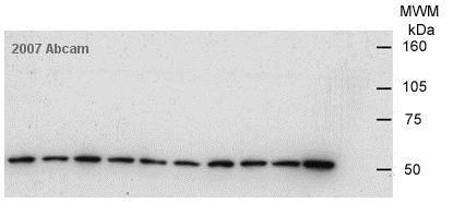 Western blot - Anti-Tubulin antibody [YOL1/34] - Microtubule Marker (ab6161)