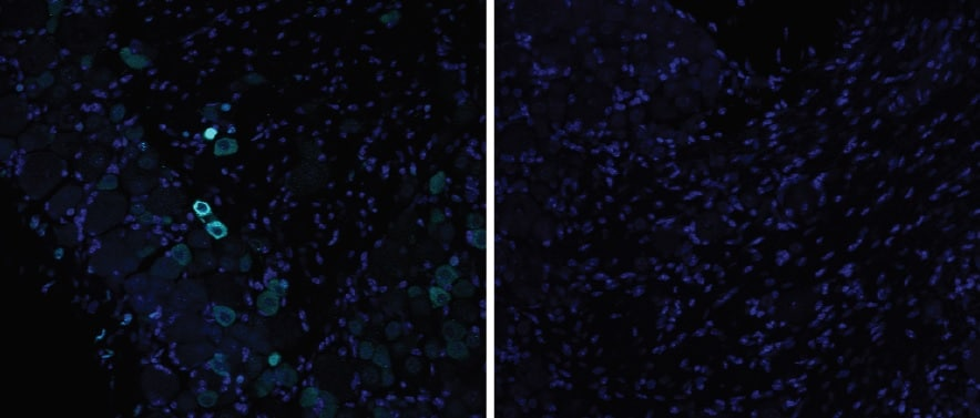 Immunohistochemistry - Free Floating - Anti-VR1 antibody (ab6166)