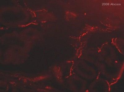 Immunohistochemistry (Frozen sections) - Anti-Choline Acetyltransferase antibody (ab6168)