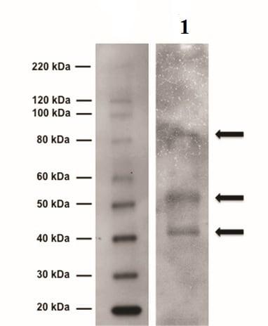 Western blot - Anti-Tyrosine Hydroxylase antibody (ab6211)