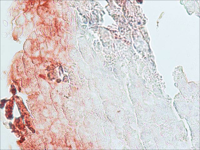 Immunohistochemistry (Formalin/PFA-fixed paraffin-embedded sections) - Anti-beta Catenin antibody (ab6302)
