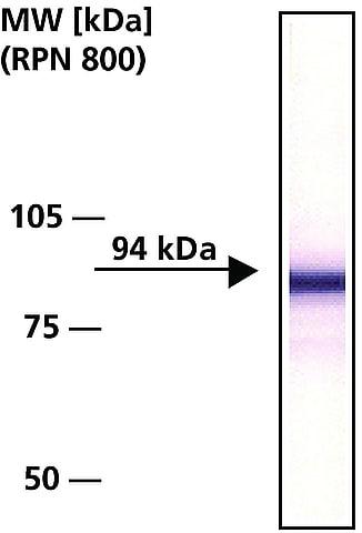 Western blot - Anti-beta Catenin antibody (ab6302)