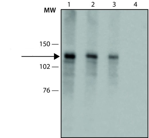 Western blot - Anti-Collagen I antibody [COL-1] (ab6308)