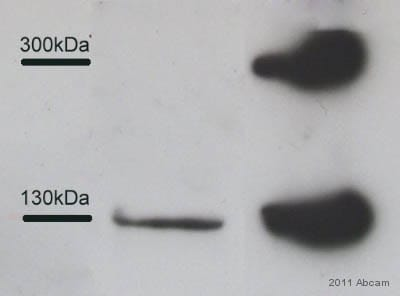 Western blot - Anti-Collagen III antibody [FH-7A] (ab6310)