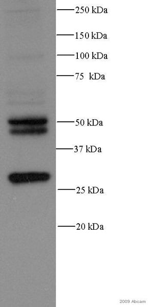 Western blot - Anti-Cathepsin D antibody [CTD-19] (ab6313)