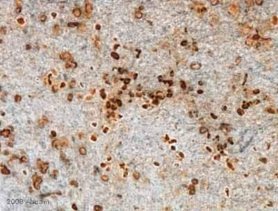 Immunohistochemistry (Formalin/PFA-fixed paraffin-embedded sections) - Anti-BrdU antibody [BU1/75 (ICR1)] - Proliferation Marker (ab6326)