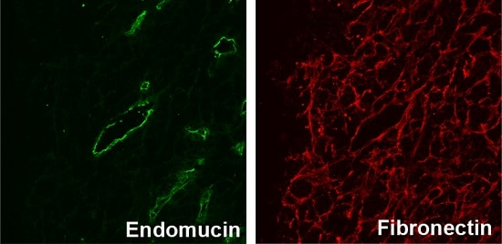 Immunocytochemistry/ Immunofluorescence - Anti-Fibronectin antibody [IST-9] (ab6328)
