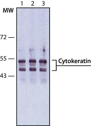 Western blot - Anti-pan Cytokeratin antibody [PCK-26] (ab6401)