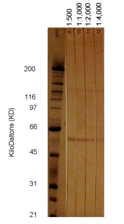 Western blot - Anti-Cytomegalovirus Glycoprotein B antibody [2F12] (ab6499)