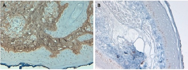 Immunohistochemistry (Formalin/PFA-fixed paraffin-embedded sections) - Biotin Anti-Collagen I antibody (ab6577)