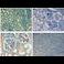 Immunohistochemistry (Formalin/PFA-fixed paraffin-embedded sections) - Biotin Anti-Fibronectin antibody (ab6584)