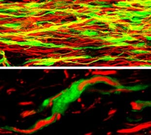Immunohistochemistry (Frozen sections) - FITC Anti-GFP antibody (ab6662)