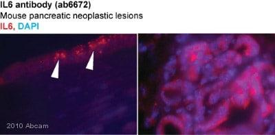 Immunohistochemistry (Frozen sections) - Anti-IL6 antibody (ab6672)