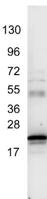 Western blot - Anti-IL6 antibody (ab6672)