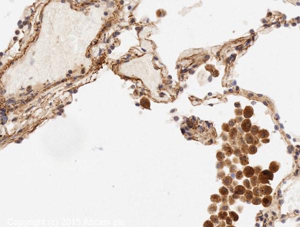 Immunohistochemistry (Formalin/PFA-fixed paraffin-embedded sections) - Anti-IL-6 antibody (ab6672)