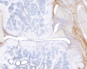 Immunohistochemistry (Formalin/PFA-fixed paraffin-embedded sections) - Anti-IL6 antibody (ab6672)