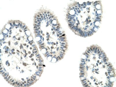 Immunohistochemistry (Formalin/PFA-fixed paraffin-embedded sections) - Anti-NR0B1 / Dax1 antibody (ab60144)