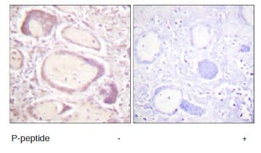Immunohistochemistry (Formalin/PFA-fixed paraffin-embedded sections) - Anti-Cyclin B1 (phospho S147) antibody (ab60986)