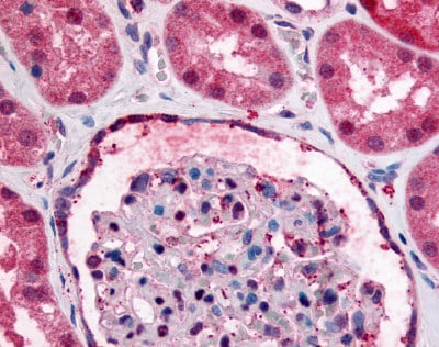 Immunohistochemistry (Formalin/PFA-fixed paraffin-embedded sections) - Anti-GPR89A antibody (ab60998)