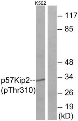 Western blot - Anti-p57 Kip2 (phospho T310) antibody (ab61064)
