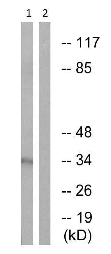 Western blot - Anti-RPA32/RPA2 (phospho T21) antibody (ab61065)