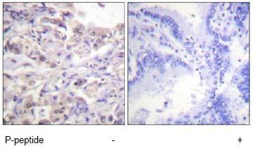 Immunohistochemistry (Formalin/PFA-fixed paraffin-embedded sections) - Anti-hnRNP D/AUF1 (phospho S83) antibody (ab61096)