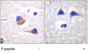 Immunohistochemistry (Formalin/PFA-fixed paraffin-embedded sections) - Anti-JAK3 (phospho Y785) antibody (ab61102)