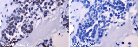 Immunohistochemistry (Formalin/PFA-fixed paraffin-embedded sections) - Anti-Aurora A antibody (ab61114)