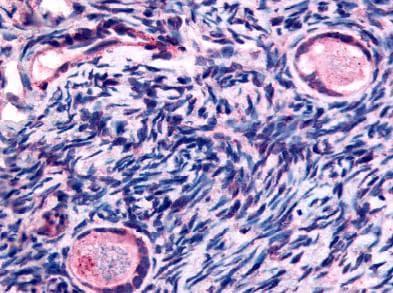 Immunohistochemistry (Formalin/PFA-fixed paraffin-embedded sections) - Anti-TMEM5 antibody (ab61145)