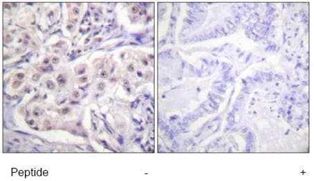 Immunohistochemistry (Formalin/PFA-fixed paraffin-embedded sections) - Anti-hnRNP D/AUF1 antibody (ab61193)