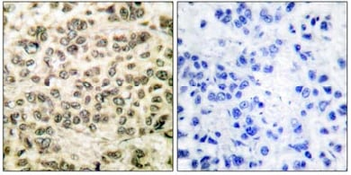 Immunohistochemistry (Formalin/PFA-fixed paraffin-embedded sections) - Anti-HDAC3 antibody (ab61216)