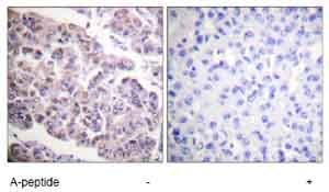 Immunohistochemistry (Formalin/PFA-fixed paraffin-embedded sections) - Anti-Histone H4 (acetyl K12) antibody (ab61238)